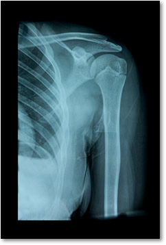 X-Ray Services at RVP